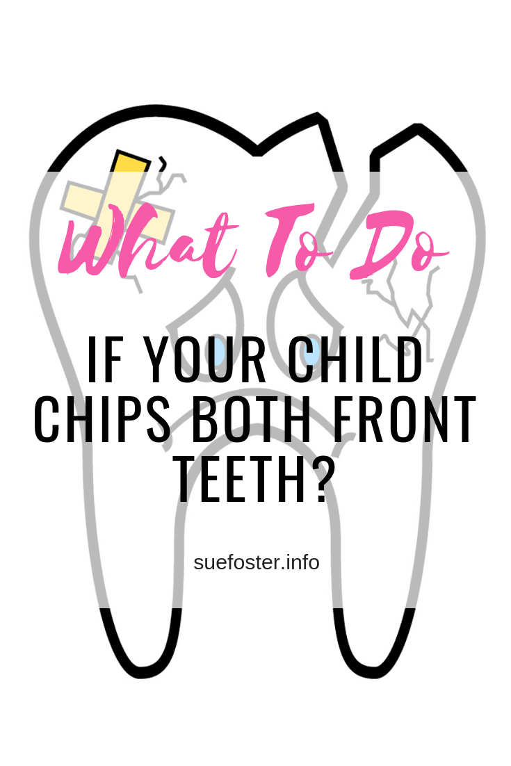 What To Do If Your Child Chips Both Front Teeth?