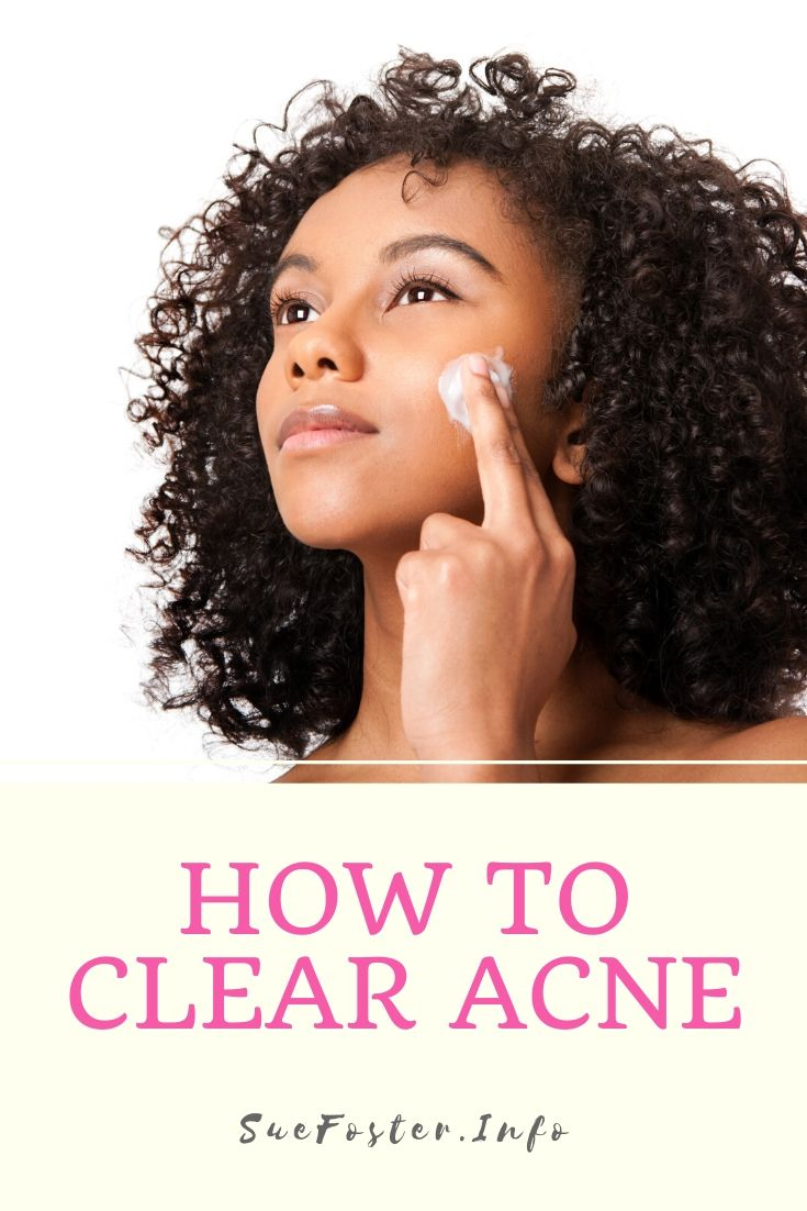 How to clear acne.