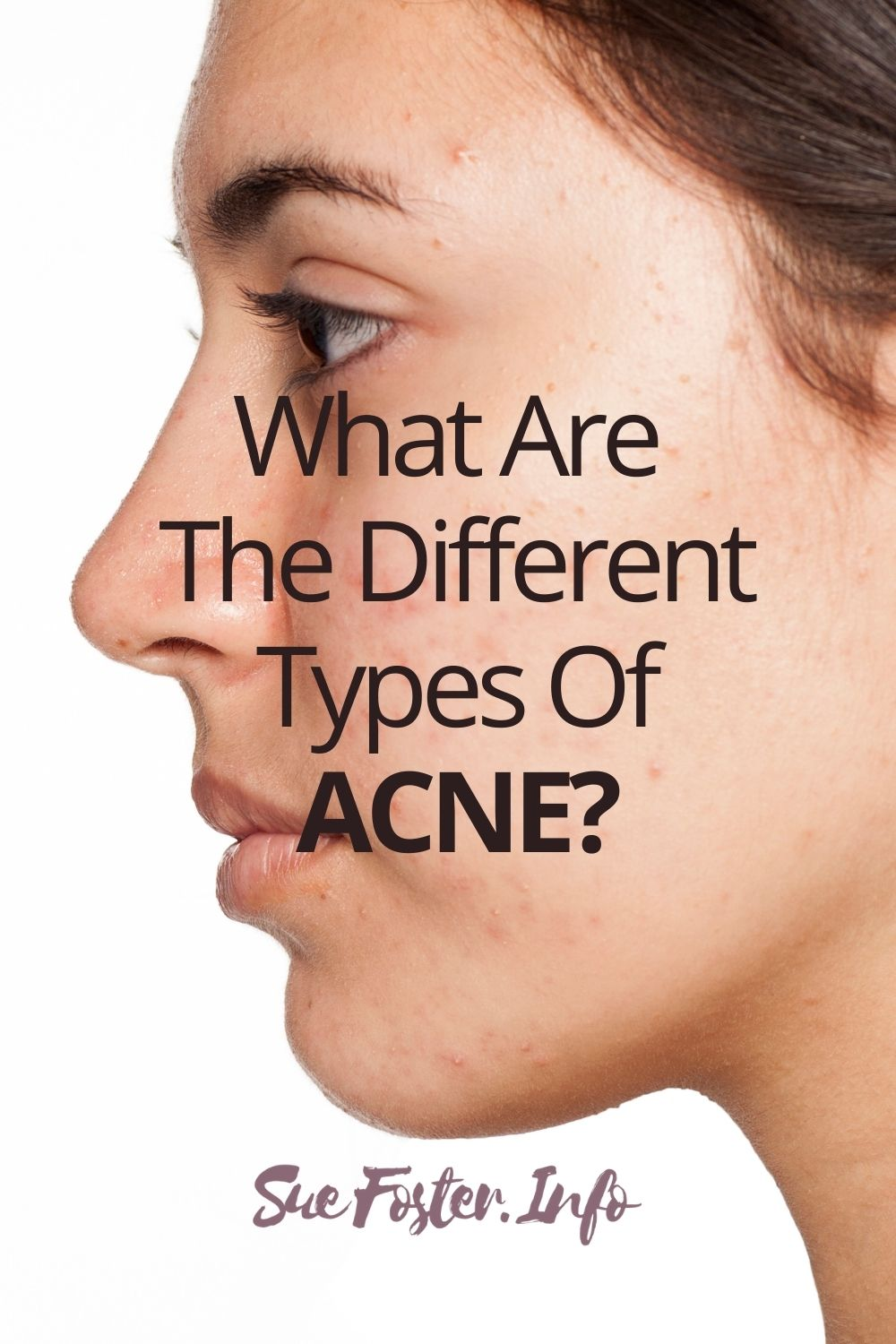 Acne can present itself in various different forms, this post takes you through them.